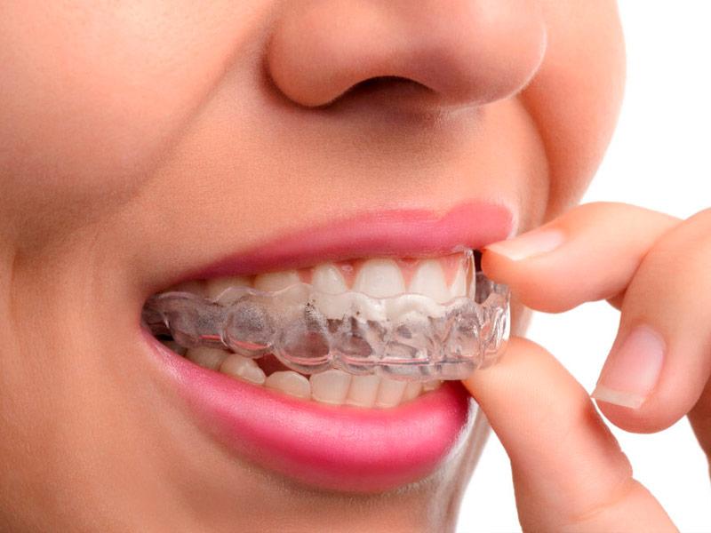 Fabián Ortodoncia Ortodoncia Invisible